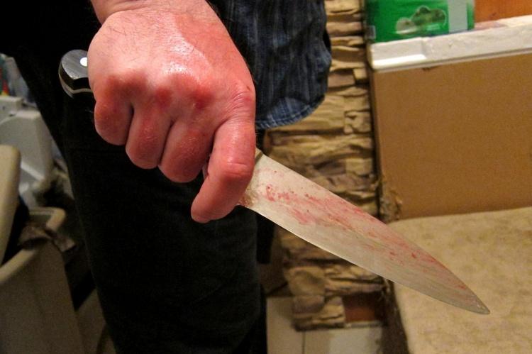 Гость отрезал ухо хозяину в поселке Свердлова